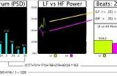 Arduino Pulse Sensor Cardio grafiek